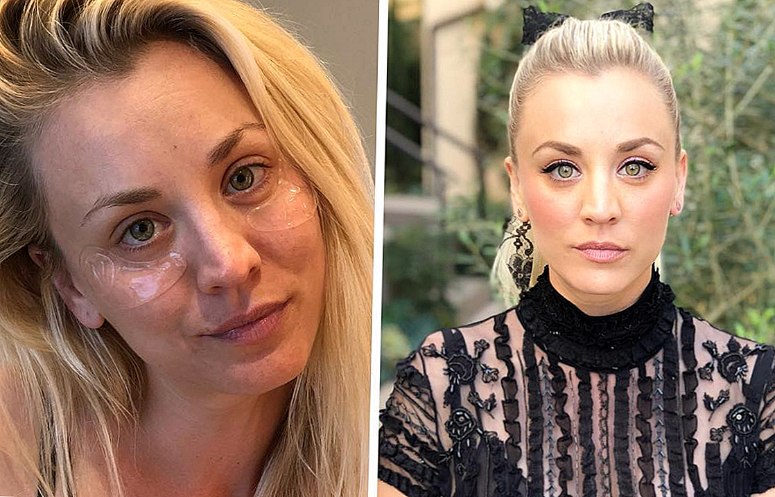 "See Under-the-Radar toode andis Kaley Cuoco'ile ""Instant Eye Lift"" enne Golden Globe'i"