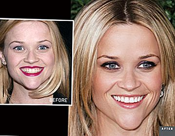 Reese Witherspoon's Smile Makeover: From Stained To Stellar